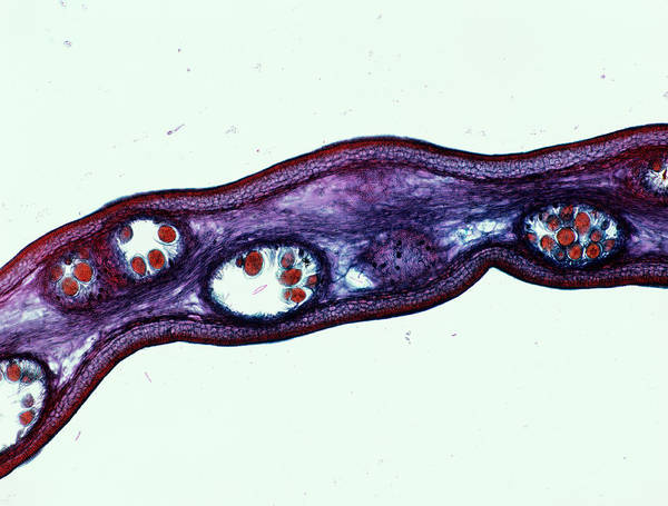 Seaweed Photograph - Seaweed Female Sex Cells by Alfred Pasieka/science Photo Library