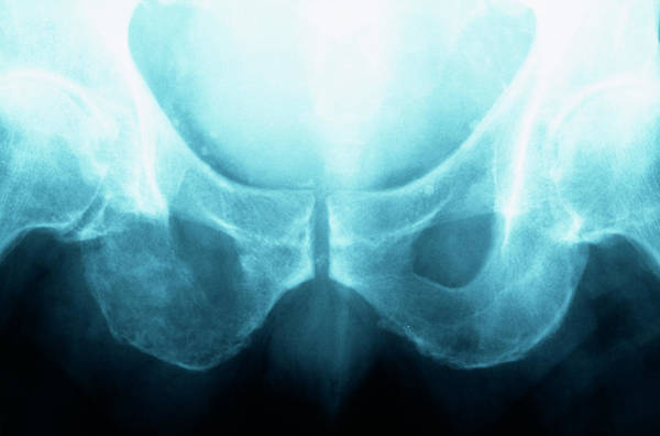 Medical Imaging Photograph - Secondary Bone Cancer by Dr P. Marazzi/science Photo Library