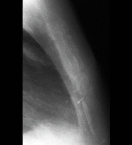Neoplasm Photograph - Secondary Bone Cancer by Zephyr
