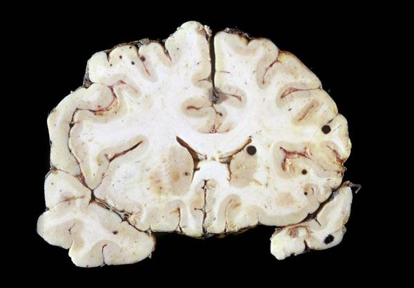 Nervous System Photograph - Secondary Brain Cancer by Pr. R. Abelanet - Cnri