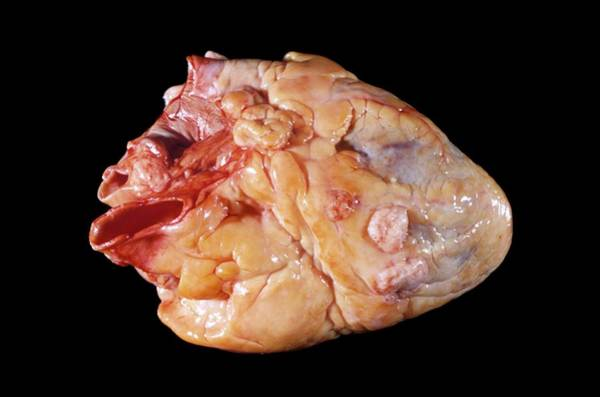 Neoplasm Photograph - Secondary Heart Cancer by Pr. M. Forest - Cnri