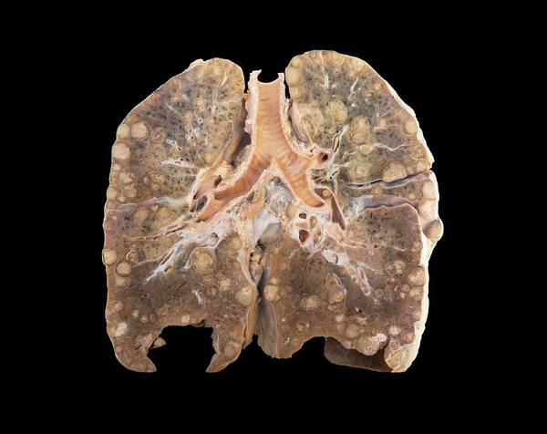 Lung Photograph - Secondary Lung Cancer by Microscape