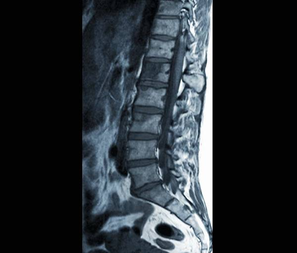 Wall Art - Photograph - Secondary Spinal Cancer, Mri Scan by Science Photo Library