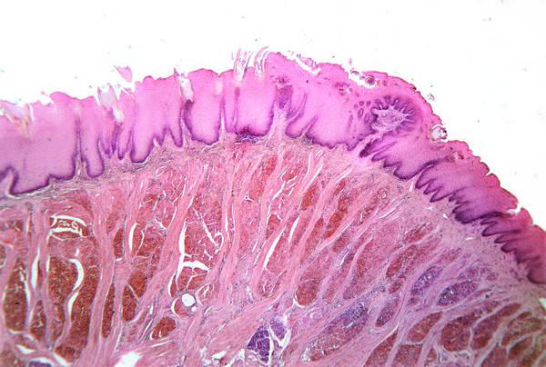 Microscopic Photograph - Section Through A Human Tongue. by John Burbidge/science Photo Library