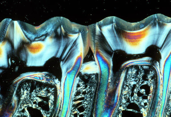 Enamel Wall Art - Photograph - Sectioned Teeth by Tissuepix/science Photo Library