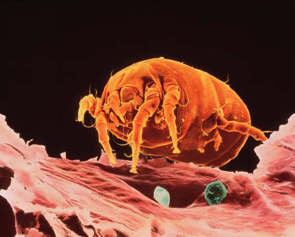 Arachnida Wall Art - Photograph - Sem Of A Dust Mite On Dandruff by K.h. Kjeldsen/science Photo Library
