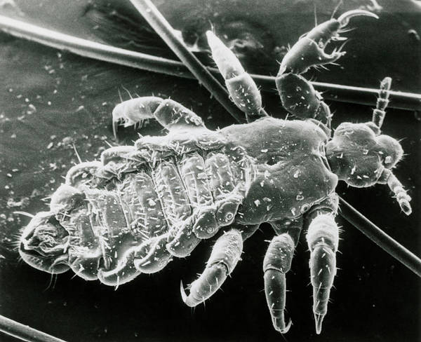 Wall Art - Photograph - Sem Of Blood Sucking Human Body/head Louse by Cath Wadforth/science Photo Library.