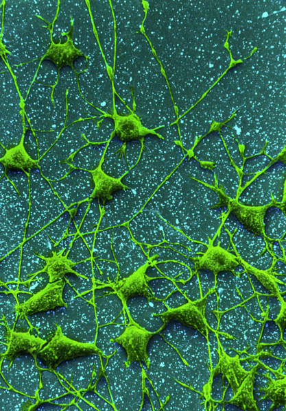 Axon Wall Art - Photograph - Sem Of Nerve Cells And Their Dendrites by Steve Gschmeissner/science Photo Library