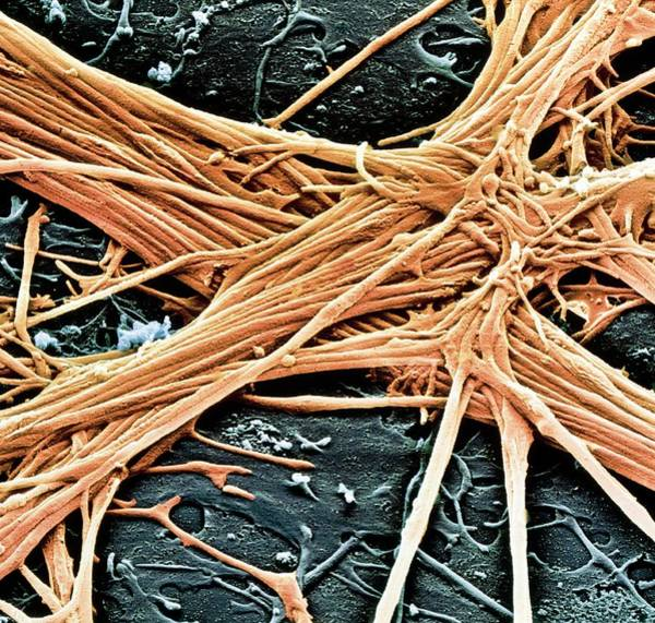 Axon Wall Art - Photograph - Sem Of Nerve Fibres by Juergen Berger/science Photo Library