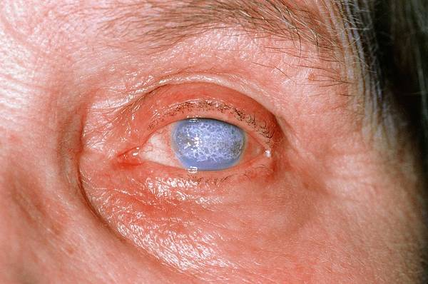 Severe Wall Art - Photograph - Severe Corneal Scarring In An Elderly Lady by Dr P. Marazzi/science Photo Library