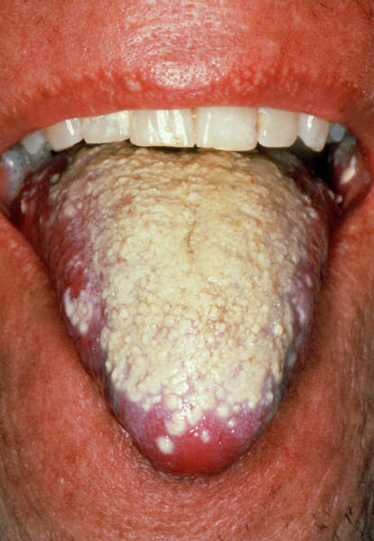Oral Wall Art - Photograph - Severe Oral Candidiasis (thrush) Affecting Tongue by Science Photo Library