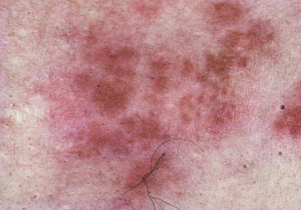 Shingles Photograph - Shingles Rash From Herpes Zoster Infection by James Stevenson/science Photo Library