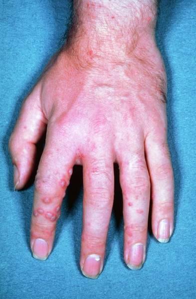 Shingles Photograph - Shingles Rash On Hand by James Stevenson/science Photo Library