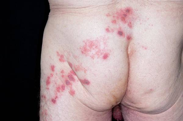 Shingles Photograph - Shingles Rash On The Buttock by Dr P. Marazzi/science Photo Library