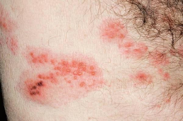 Shingles Photograph - Shingles Rash On The Torso by Dr P. Marazzi/science Photo Library