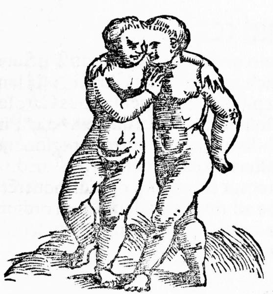 Wall Art - Drawing - Siamese Twins Joined At The  Head by Mary Evans Picture Library
