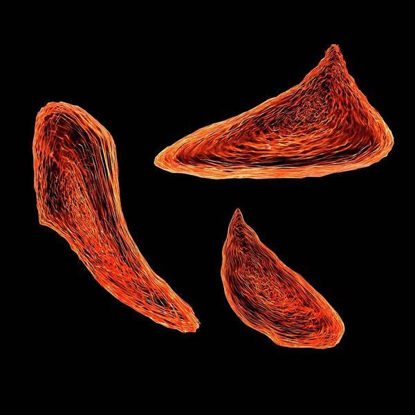 Hematology Wall Art - Photograph - Sickle Cell Anaemia by Mehau Kulyk