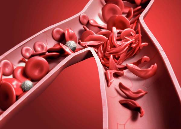 Haematological Wall Art - Photograph - Sickle Cell Anaemia by Tim Vernon
