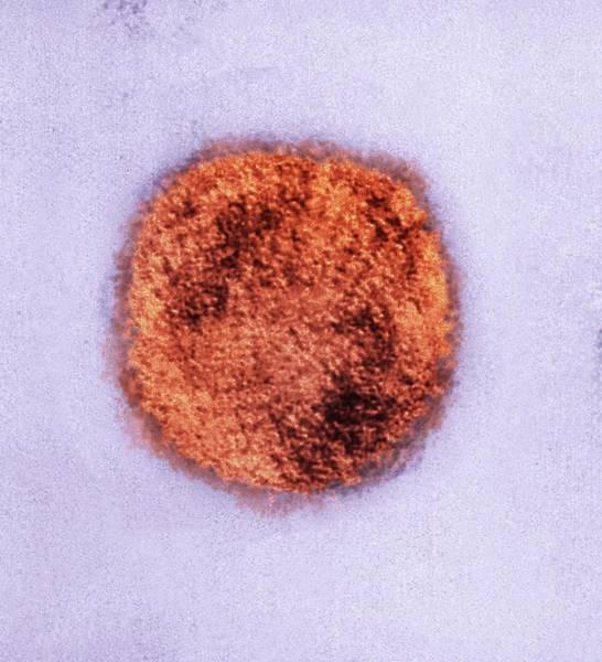 Envelop Wall Art - Photograph - Sin Nombre Virus Particle by Ami Images/charles D. Humphrey, Luanne Elliott