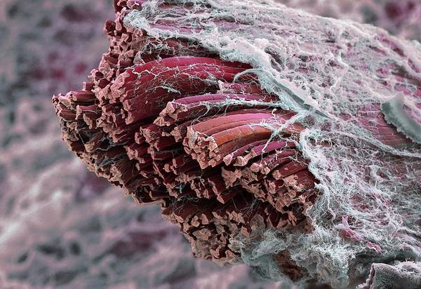Voluntary Muscle Photograph - Skeletal Muscle Fibres by Martin Oeggerli/science Photo Library