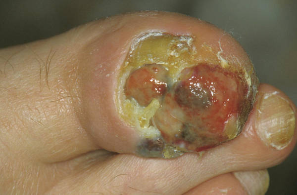 Malignant Wall Art - Photograph - Skin Cancer Under A Toe by Dr M.a. Ansary/science Photo Library