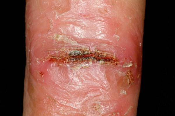 Scaling Photograph - Skin Fissure Due To Eczema by Dr P. Marazzi/science Photo Library