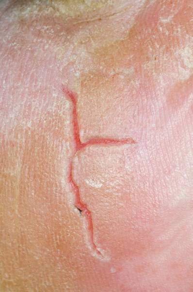 Scaling Photograph - Skin Fissure From Eczema On The Heel by Dr P. Marazzi/science Photo Library