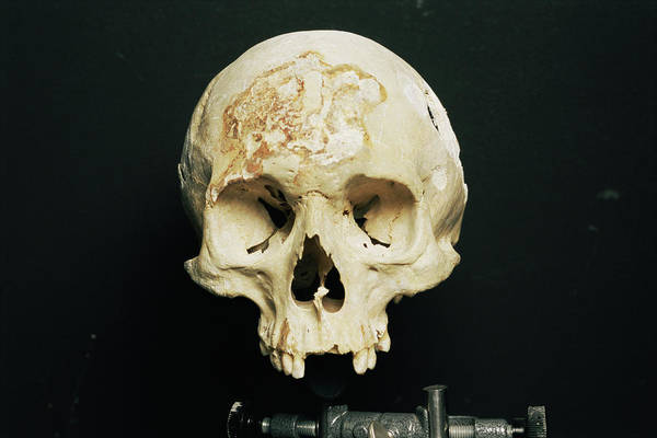 Wall Art - Photograph - Skull During Forensic Research by Philippe Psaila/science Photo Library