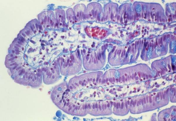 Digestive Systems Photograph - Small Intestine Lining by Cnri
