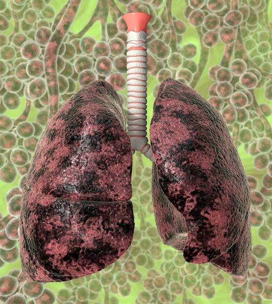 Wall Art - Photograph - Smoker's Lungs by Animated Healthcare Ltd/science Photo Library