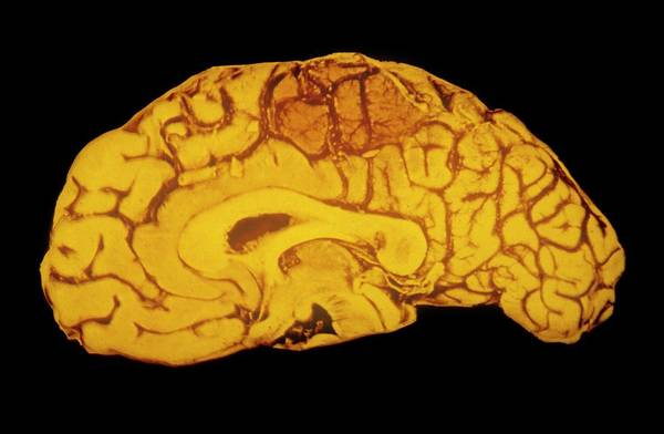 Cerebral Photograph - Specimen Human Brain Showing Haemorrhage by Cnri/science Photo Library