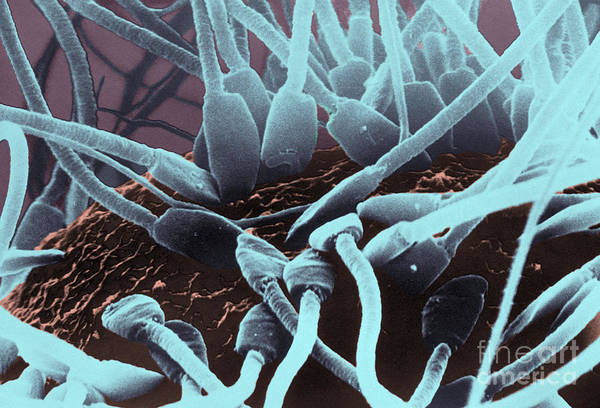 Photograph - Sperm On Surface Of Egg, Sem by David M Phillips