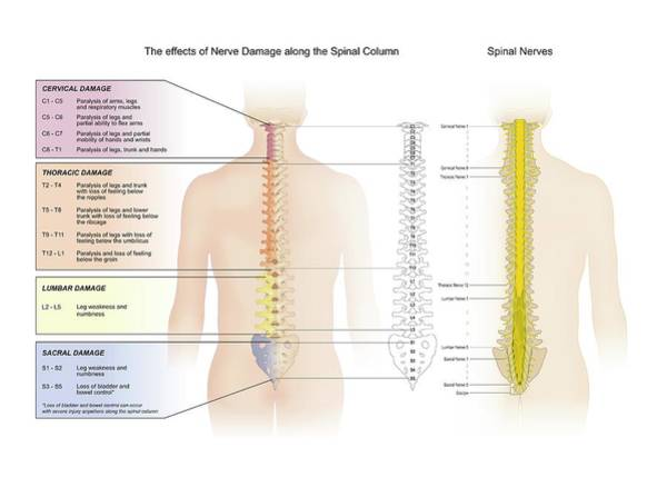 Spinal Cord Photograph - Spinal Nerve Damage by Samantha Elmhurst/science Photo Library