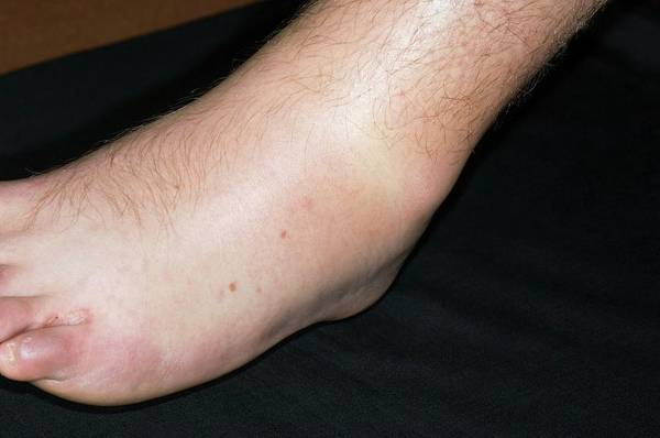 Inflammation Wall Art - Photograph - Sprained Ankle Playing Sport by Dr P. Marazzi/science Photo Library