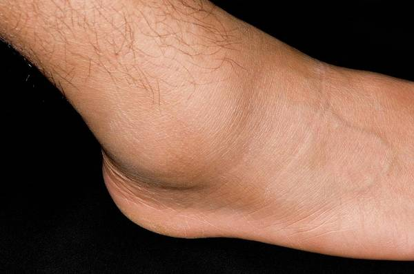 Inflammation Wall Art - Photograph - Sprained Ankle Sport's Injury by Dr P. Marazzi/science Photo Library