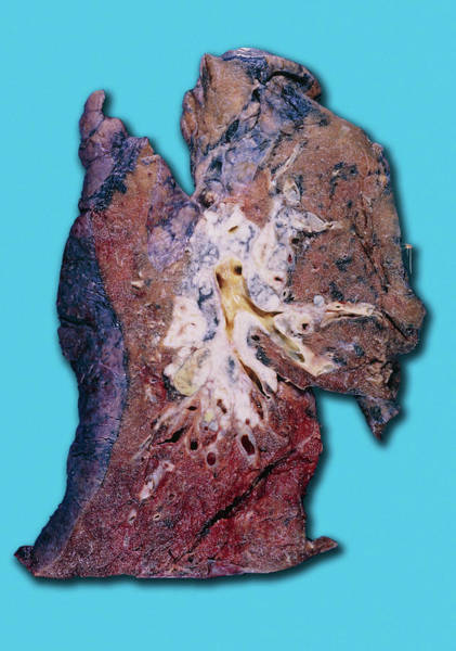 Carcinoma Wall Art - Photograph - Squamous Cell Carcinoma Lung Cancer by Medimage/science Photo Library