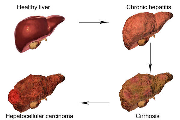 3d Visualization Photograph - Stages Of Liver Disease by Kateryna Kon/science Photo Library