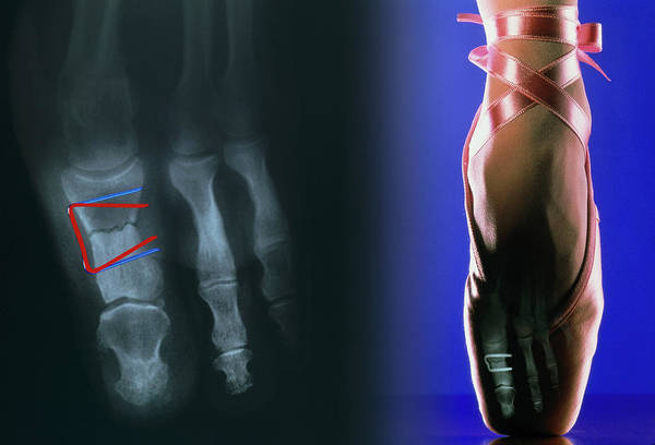 Staples Photograph - Stapled Toe Fracture by Pascal Goetgheluck/science Photo Library