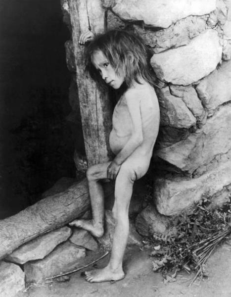 Starving Photograph - Starving Child by Underwood Archives
