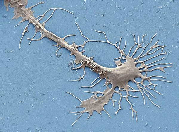 Controversial Wall Art - Photograph - Stem Cell-derived Neuron Growth Cone by Thomas Deerinck, Ncmir/science Photo Library