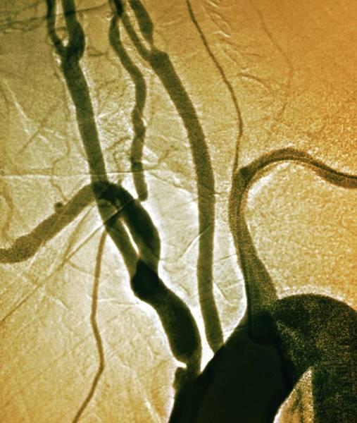Stenosis Of Arteries Art Print