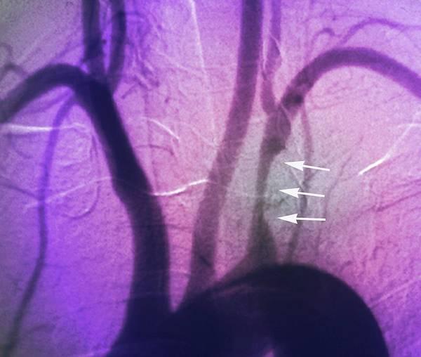 Stenosis Of Heart Artery Art Print