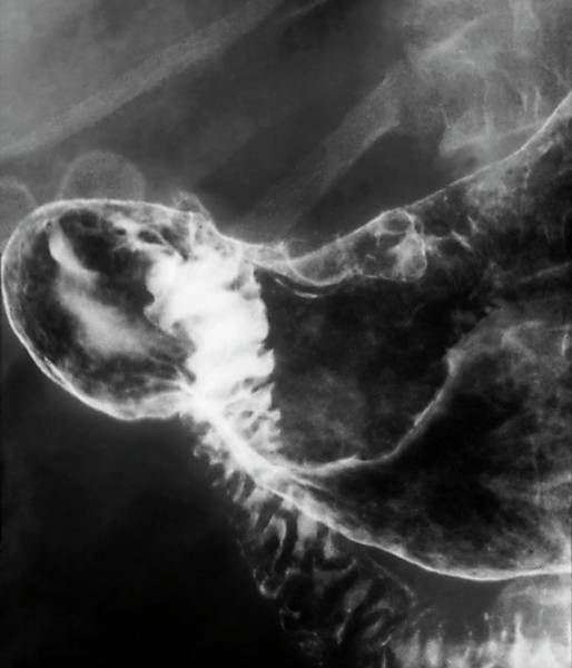 Stomach Photograph - Stomach Cancer by Zephyr/science Photo Library