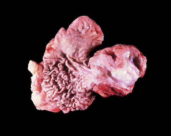 Myelin Wall Art - Photograph - Stomach Tumour by Cnri/science Photo Library
