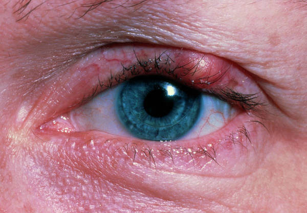 Stye Photograph - Stye (hordeolum) On Patient's Upper Eyelid by Sue Ford/science Photo Library