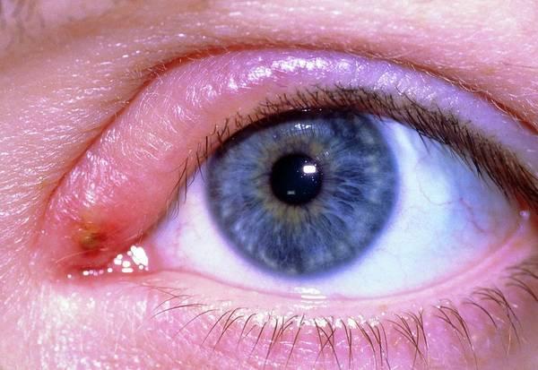 Stye Photograph - Stye On Upper Eyelid by Science Photo Library