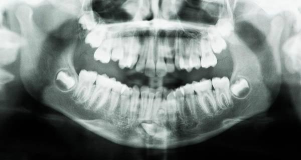 Radiograph Photograph - Supernumerary Tooth by Kaj R. Svensson