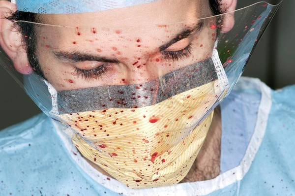 Plastic Surgery Wall Art - Photograph - Surgeon Spattered With Blood by Dr P. Marazzi/science Photo Library