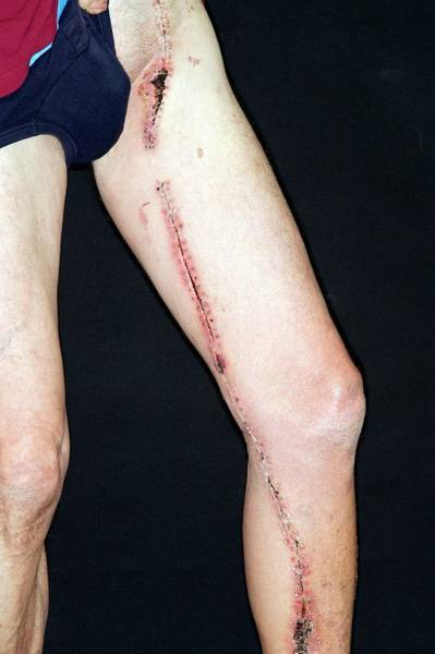 Staples Photograph - Surgical Scar Down The Leg by Dr P. Marazzi/science Photo Library