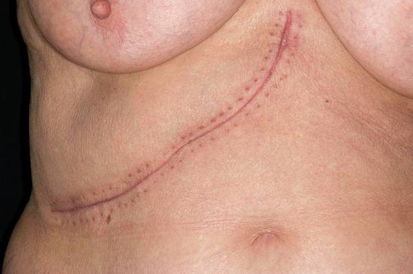 Hemi Photograph - Surgical Scar by Dr P. Marazzi/science Photo Library